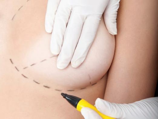 vedení řezu při zvětšení prsou implantáty