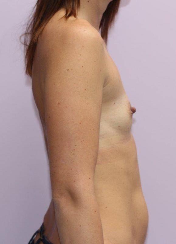 Stav prsou před zvětšením prsními implantáty