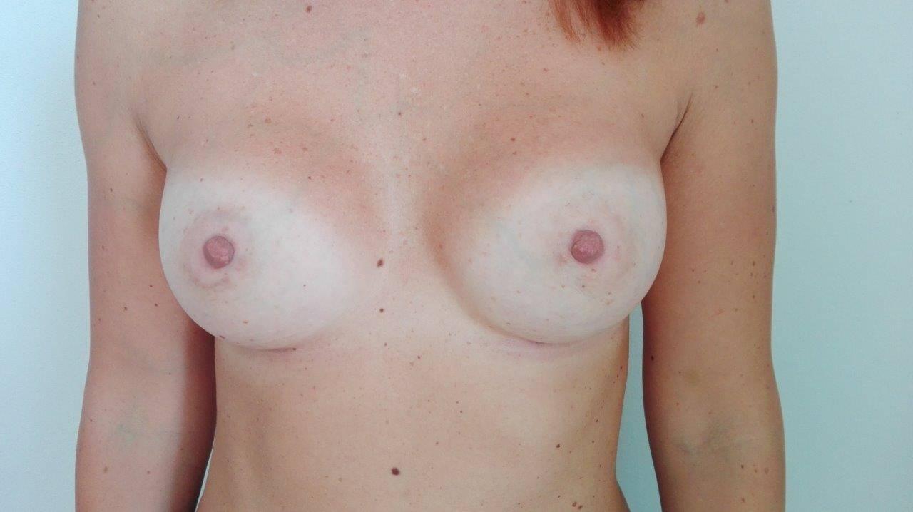 Prsa po augmentaci prsním implantáty Motiva Ergonomix, Full profil