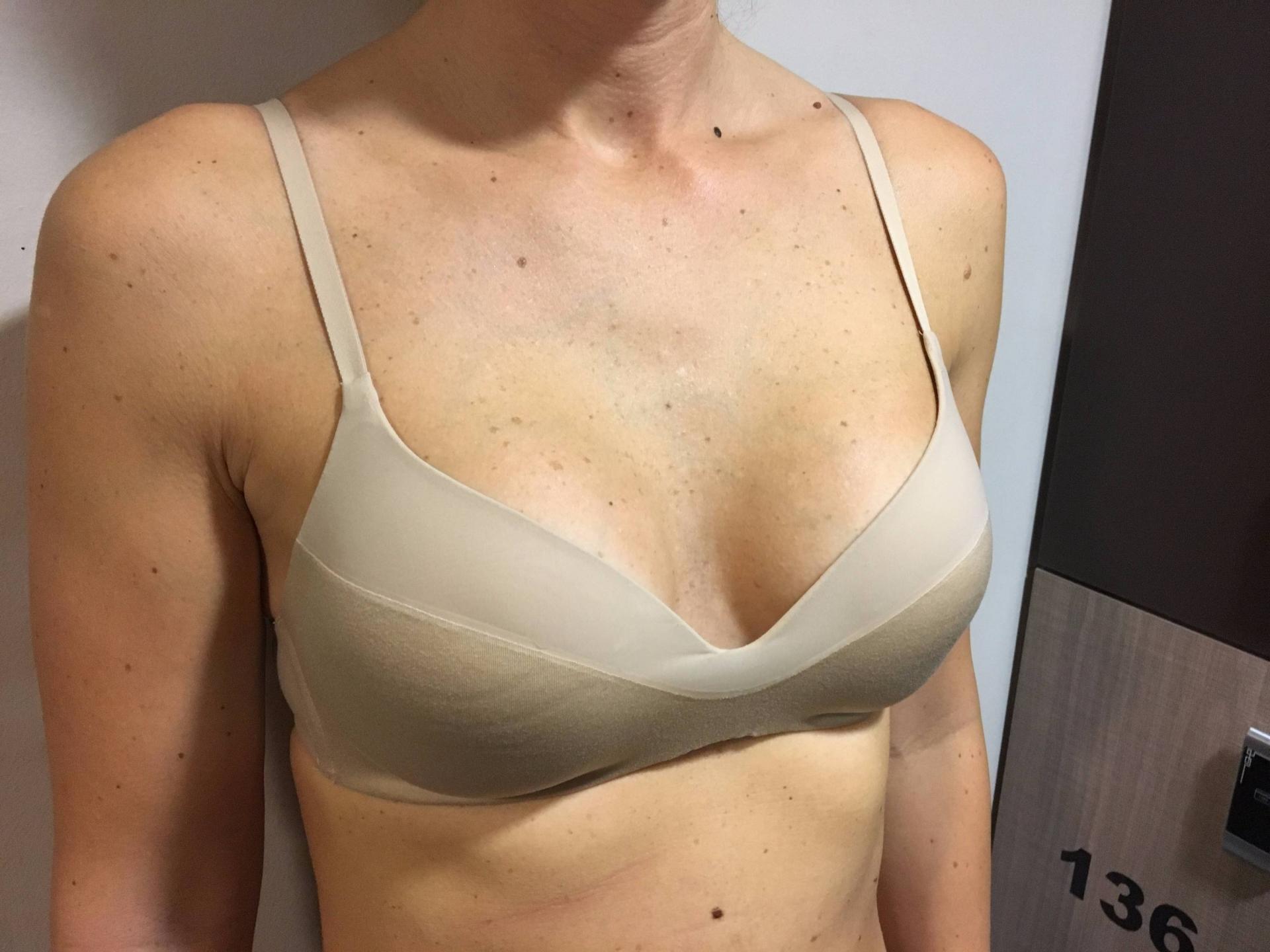 Půl roku po plastice prsou, prsní implantáty Motiva