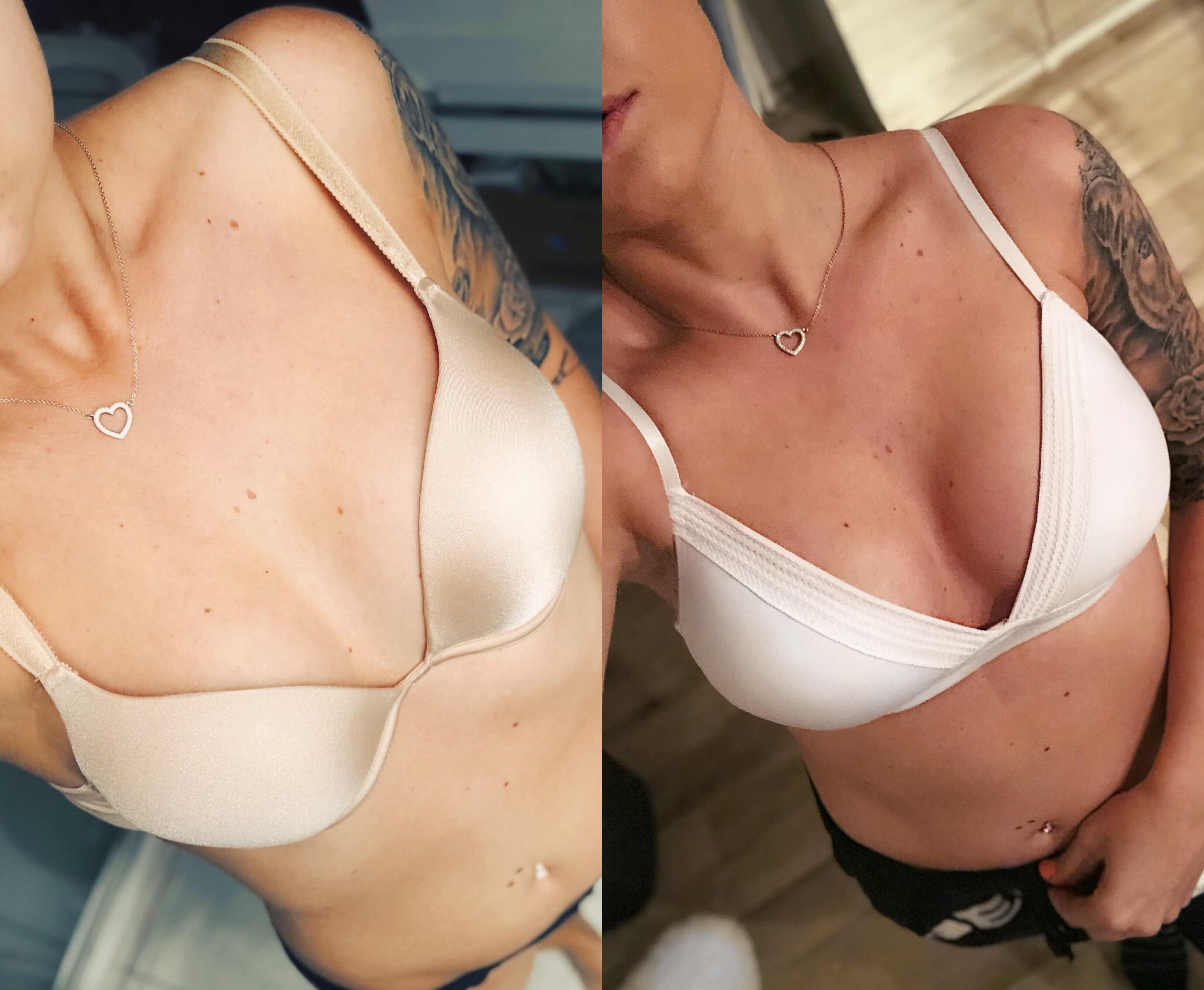 zvětšení prsou implantáty motiva před a po