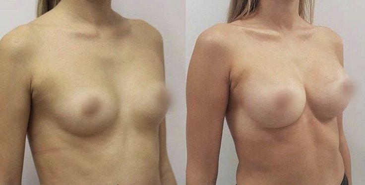 zvětšení prsou implantáty 3D vizualizace