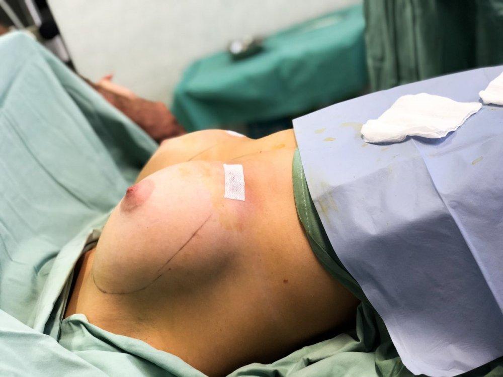 vložení implantátu pomocí insertion sleeve