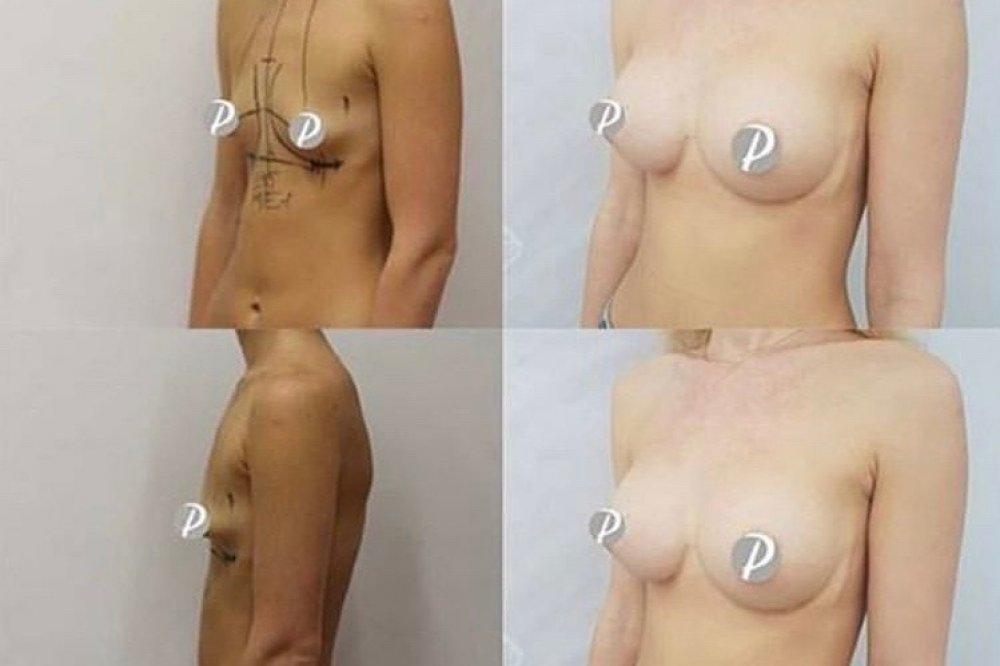 Zvětšení prsou implantáty Motiva Ergonomix, 285 ml, Demi profil od MUDr. Lucie Zárubové, Premier clinic.