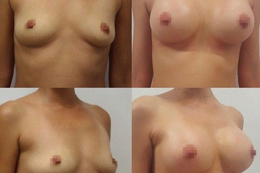 Motiva Ergonomix, 300 a 320 ml. Operoval MUDr. Juraj Payer, Premier clinic. Foto klientka 7 týdnů po zvětšení prsou.