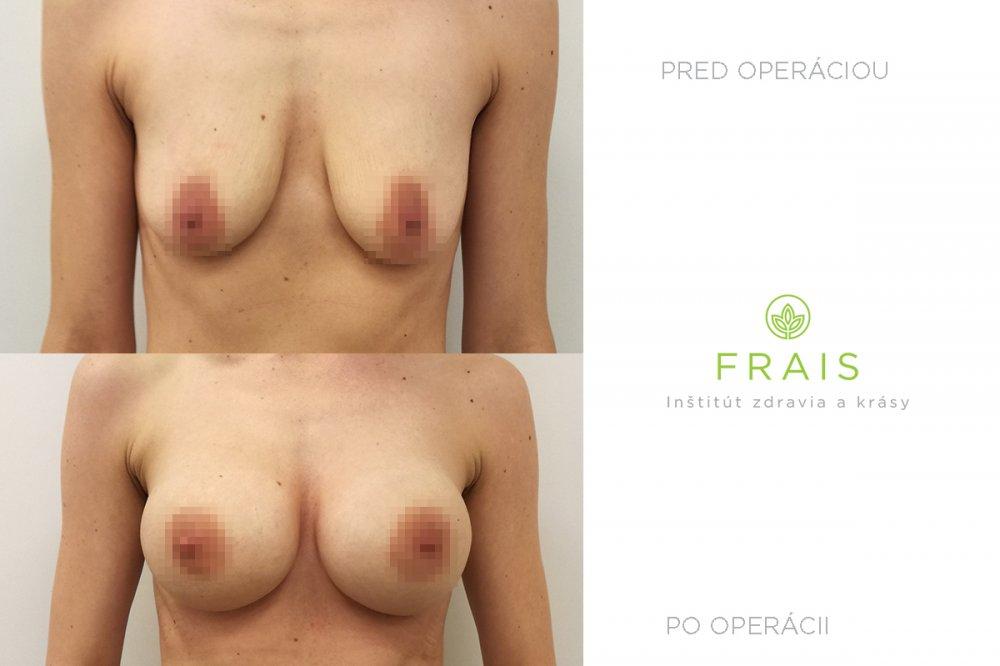 Motiva ergonomické implantáty 450 ml plný profil, porovnání před a po operaci (po 6 týdnech).