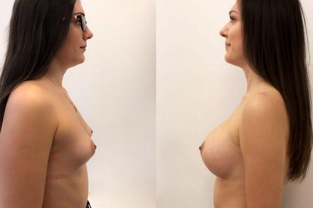 Simonka se rozhodla pro zvětšení prsou implantáty Motiva Ergonomix, 360 ml, Demi profil, operoval MUDr. Martin Dziuban.