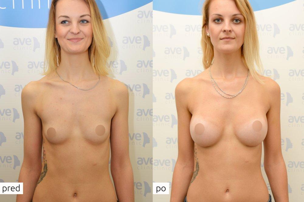 Zuzka podstoupila zvětšení prsou implantáty Motiva Ergonomix v eveclinic Bratislava. Operoval MUDr. Jozef Fedeleš.
