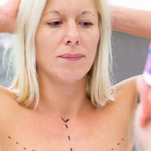 Augmentace s modelací prsou